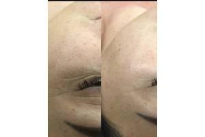 Косметологія та Масаж. Чистка обличчя. Пілінг хімічний та маски