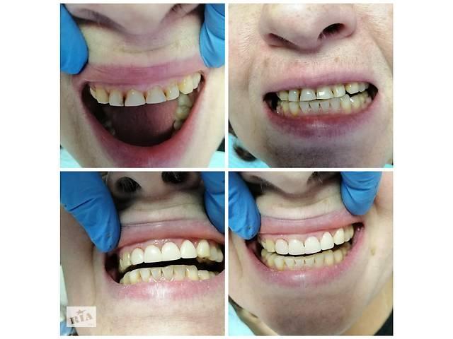 продам Стоматология отбеливание Зубов киев  бу  в Украине
