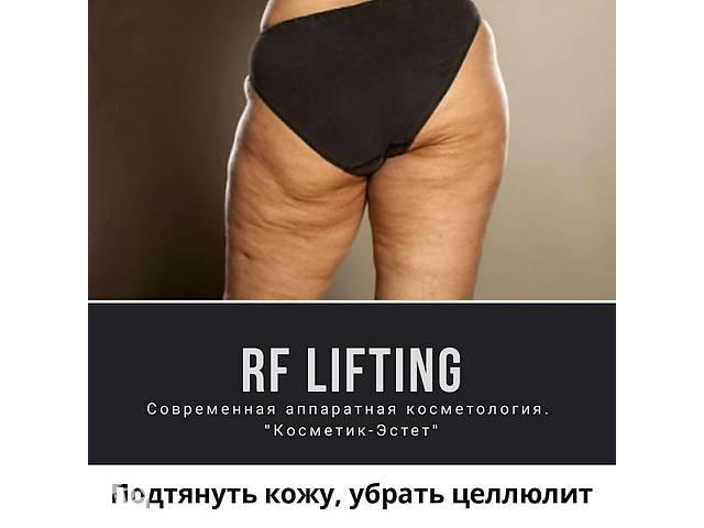 RF лифтинг. Аппаратная подтяжка кожи- объявление о продаже  в Харькове